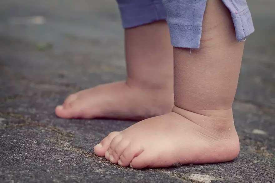 Vítima da doença tinha menos de 4 anos, informou a PBH Foto Foto: Pixabay