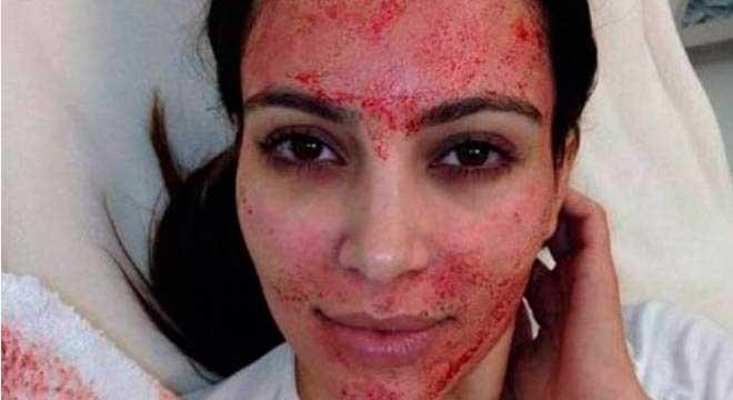 Kim Kardashian é uma das celebridades que já utilizou a técnica Twitter/Kim Kardashian