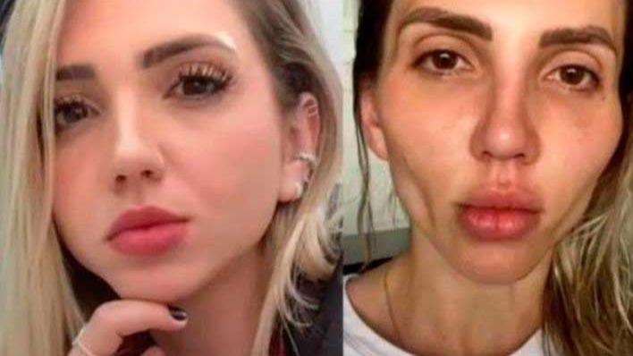 Efeitos colaterais da bichectomia teriam aparecido após um ano, diz Jéssica Frozza REPRODUÇÃO