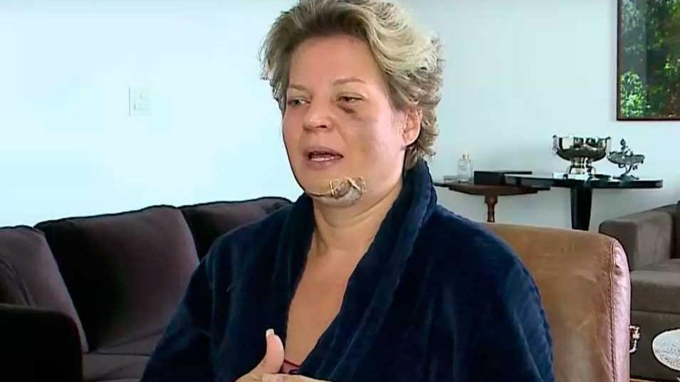 Joice Hasselmann alega ter sido vítima de atentado Foto Foto: SBT/Reprodução