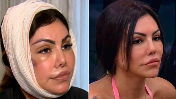 Liziane Gutierrez se recuperando de operação no rosto e após entrar em 'A Fazenda 13' REPRODUÇÃO/RECORD TV